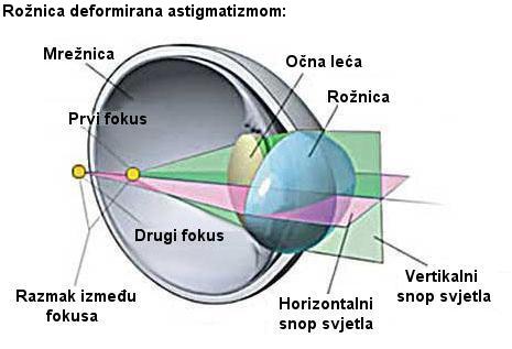 astigmatizam, korekcija astigmatizma
