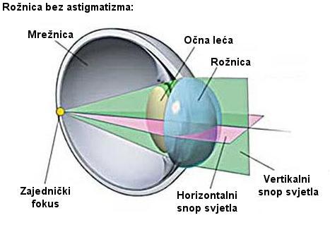 astigmatizam, korekcija astigmatizma, simptomi astigmatizma, pravilni astigmatizam