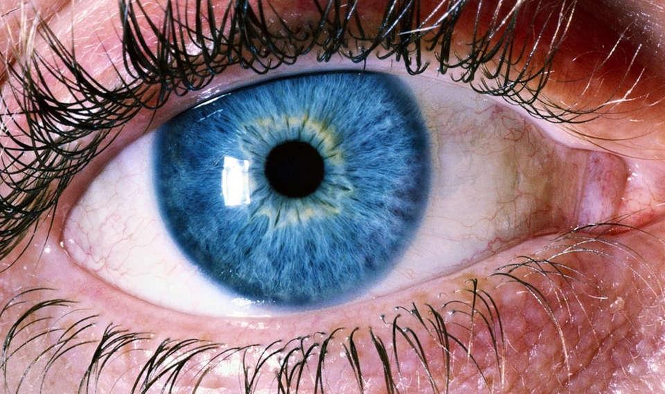 Ablacija retine, ablacija mrežnice, odvajanje mrežnice
