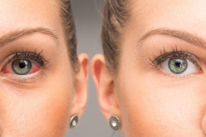 Crveno oko: Simptomi i prevencija