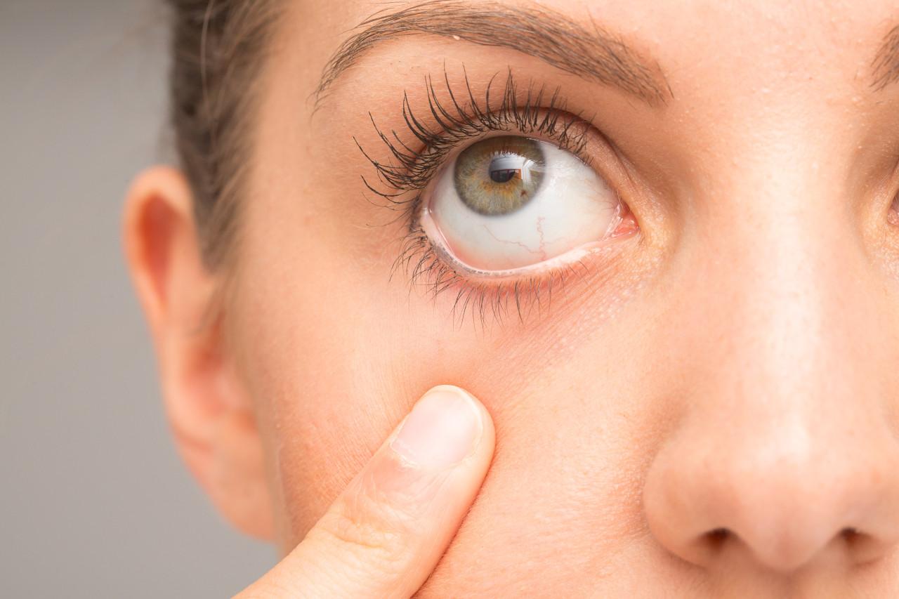 kontaktne leće za suhe oči, leće za suho oko, kontaktne lece za suhe oci