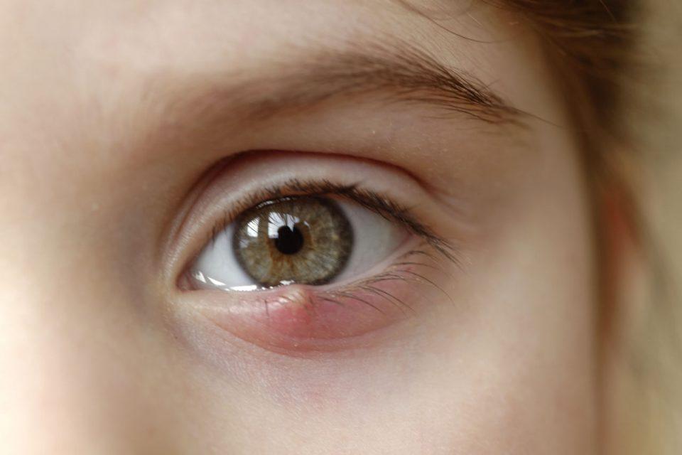 ječmenac, ječmenac na oku, ječmenac liječenje