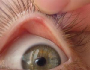 blefaritis slike