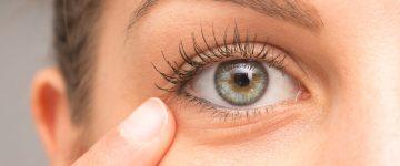 crvene oči, crvenilo očiju, crvenilo oka