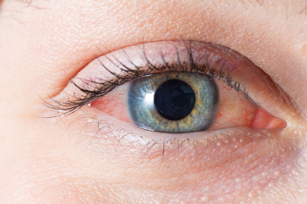 crvenilo očiju, crvene oči, crvenilo oka