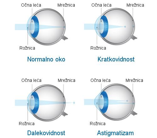 laserska operacija oka astigmatizam, laserska korekcija astigmatizma, laserska operacija astigmatizma