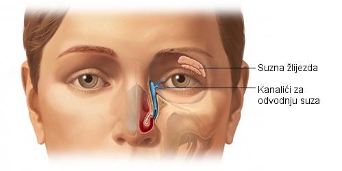 Blokirani suzni kanal simptomi, zatvoreni suzni kanali