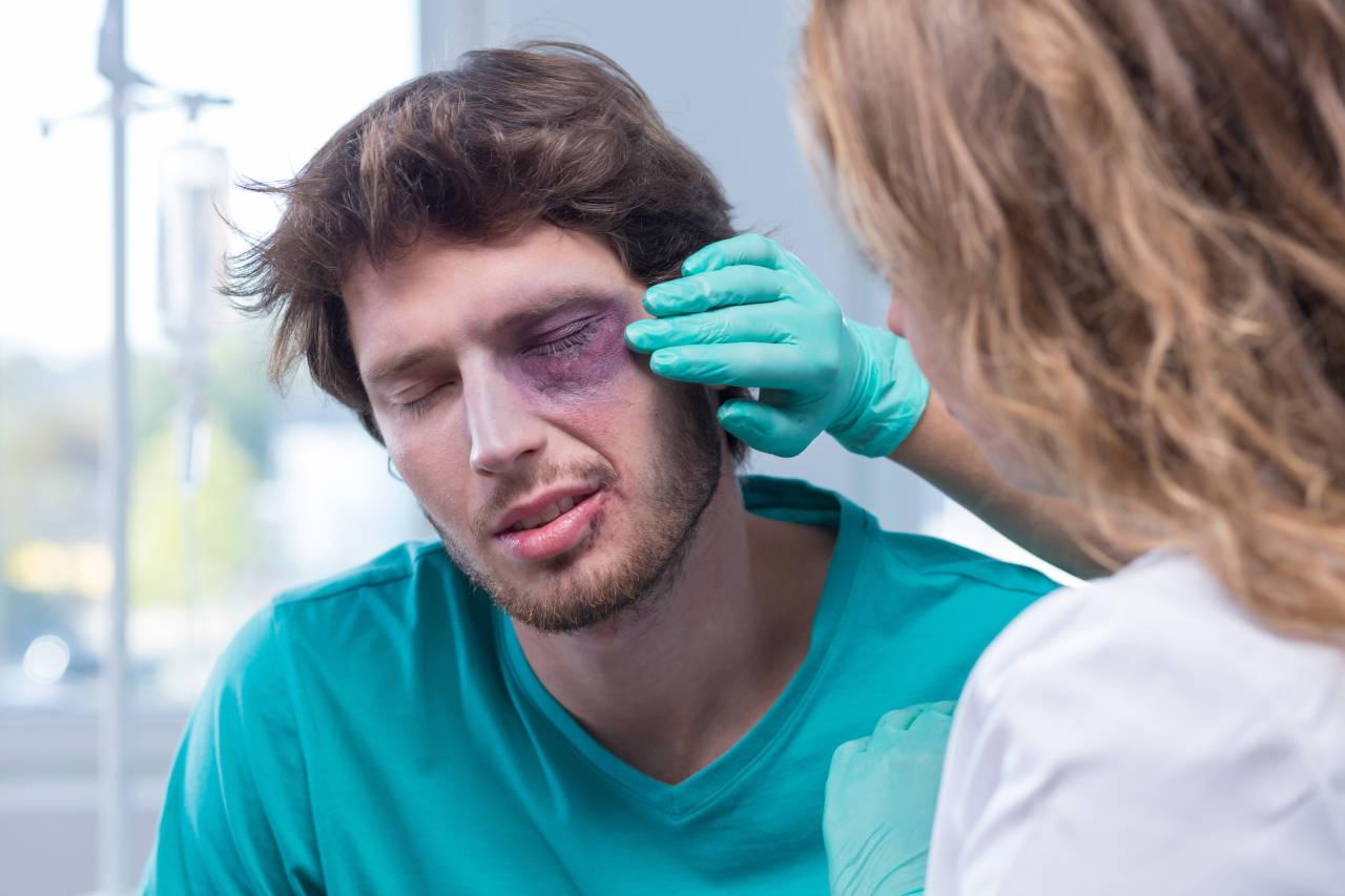 modrica ispod oka, šljiva na oku, masnica na oku