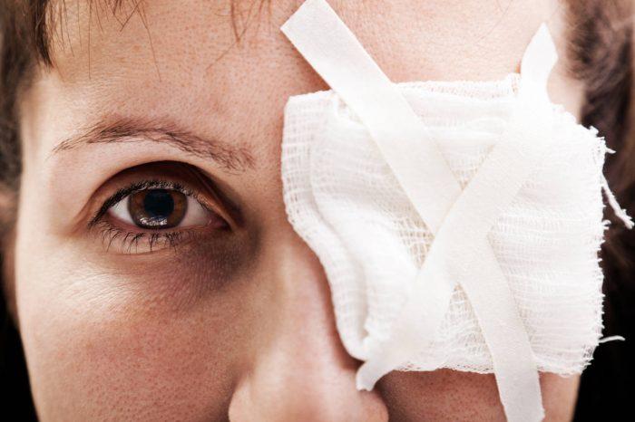 Šljiva na oku - koliko je ovo stanje opasno?