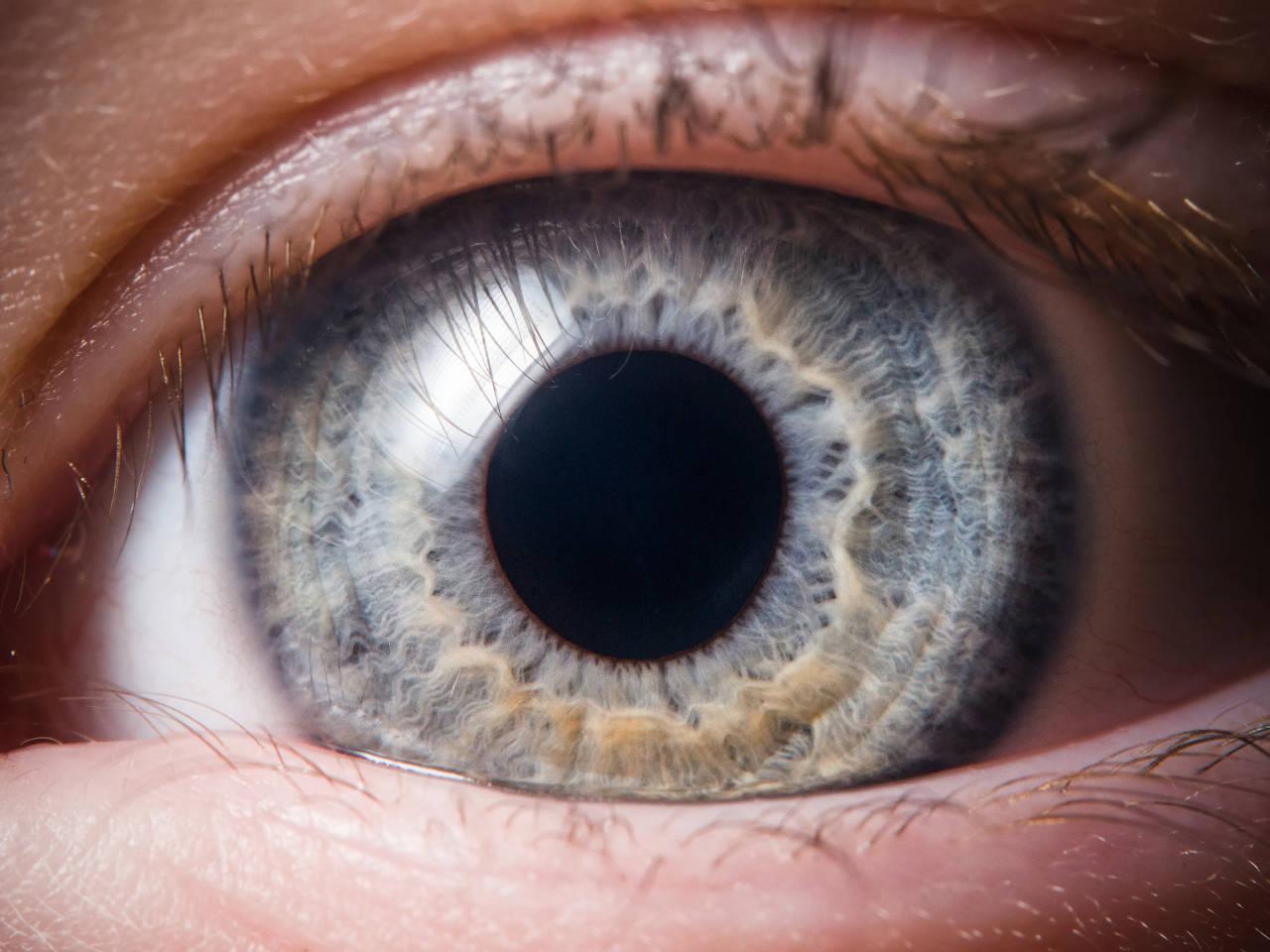 oštećena rožnica oka, ogrebotina roznice