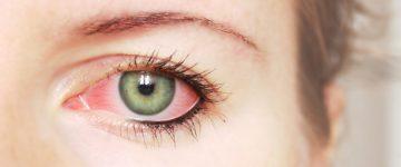 """Kako spriječiti pojavu konjuktivitisa ili """"crvenog oka""""?"""