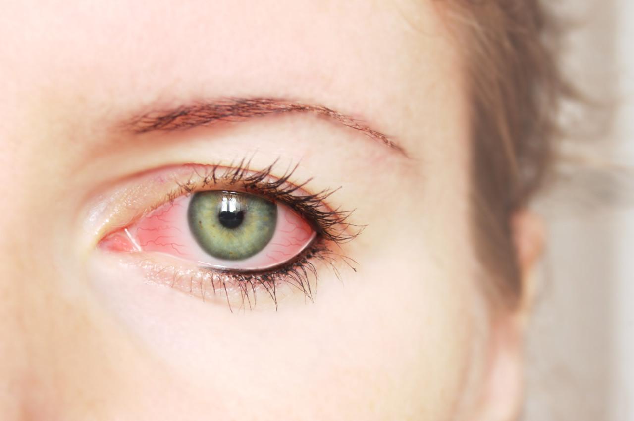 konjkutivitis prevencija, crveno oko prevencija