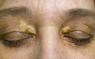 ksantelazma, masne nakupine oko očiju, masno tkivo na oku