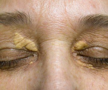 Ksantelazma – da li su masne naslage oko očiju opasne?