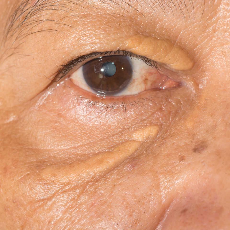 masno tkivo na očnom kapku