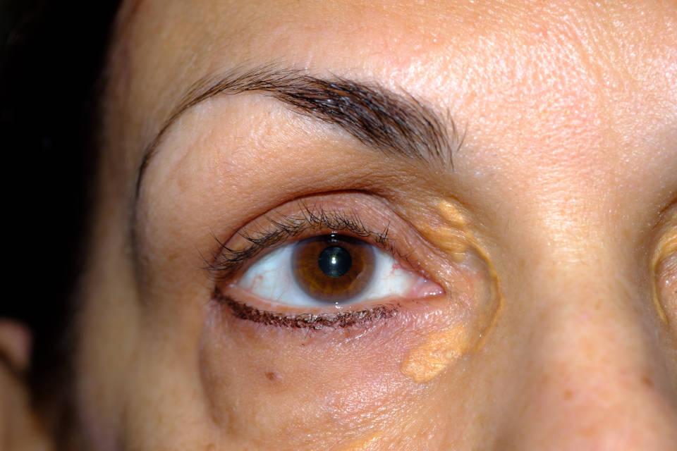 masno tkivo na oku, ksantelazma