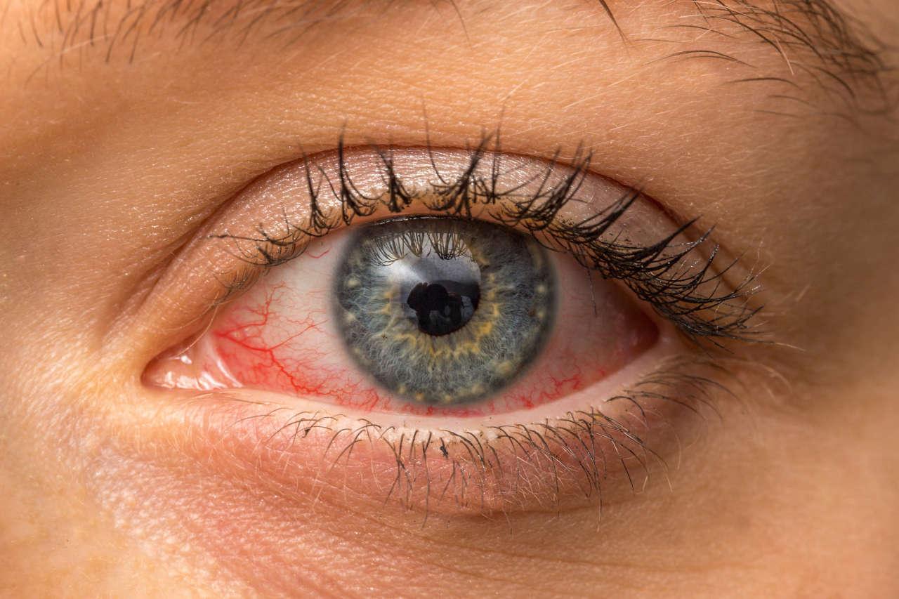 pečenje i crvenilo oka