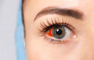 krv u oku, pucanje kapilara u oku, puknuta kapilara u oku