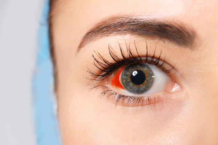 Krv u oku - što uzrokuje pucanje kapilara u oku?