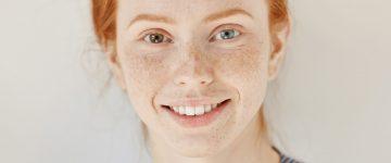 Heterokromija – različita boja očiju