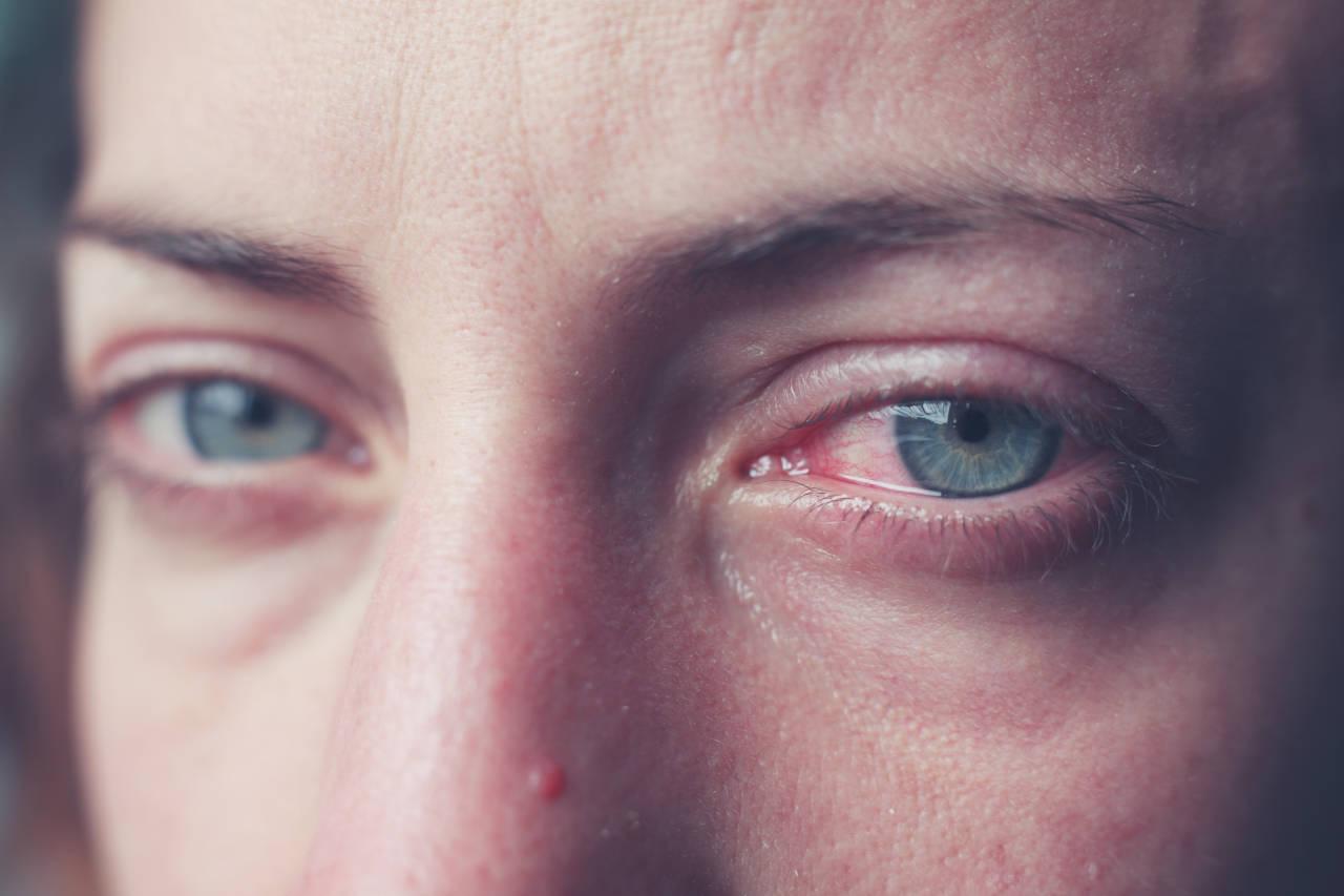 Crvene i bolne oči