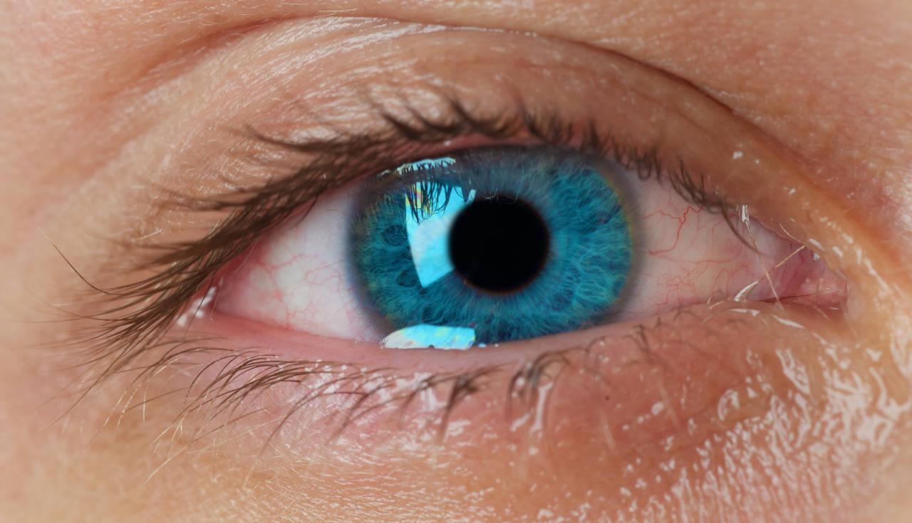 Suzno oko
