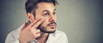 Krmelji u očima – što uzrokuje pojavu krmelja na trepavicama?