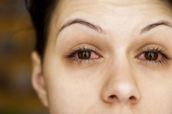 Mikrobna upala rožnice uzrokovana kontaktnim lećama (mikrobni keratitis)