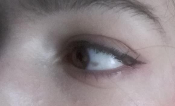 Pigmentacija na oku kirurško uklanjanje
