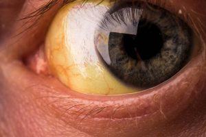 žute bjeloočnice, žute oči, žutilo bjeloočnice