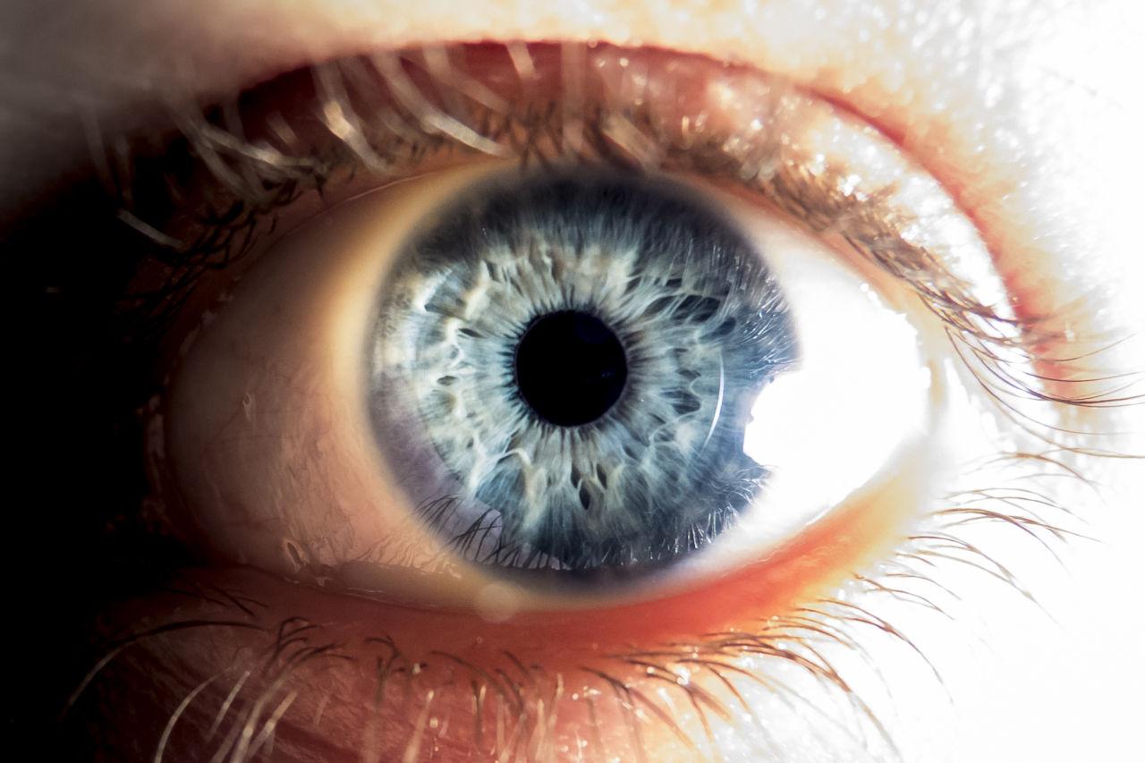 glaukom, očni tlak