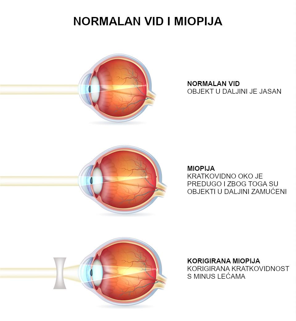 Normalan vid i miopija