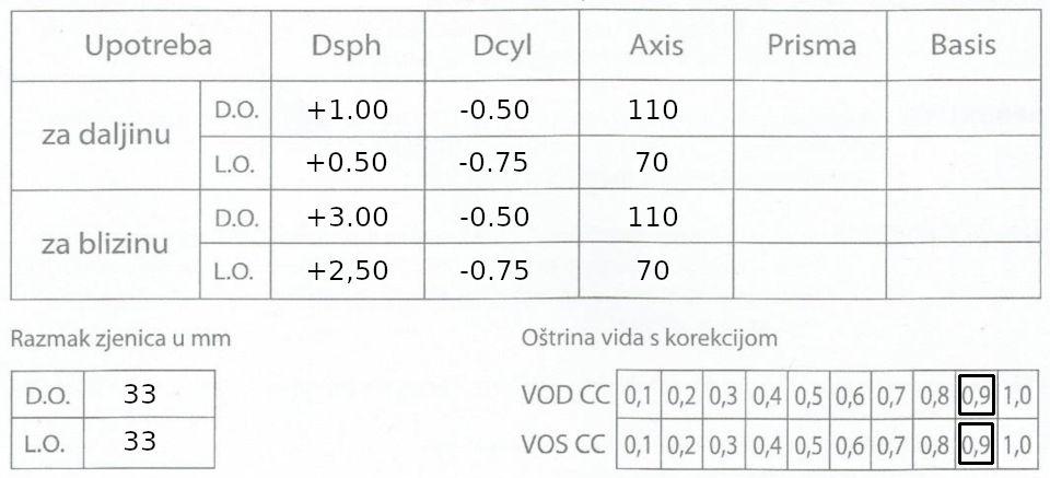 Oftalmološki nalaz dioptrija dalekovidnost, astigmatizam, presbiopija