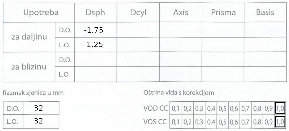 oftalmološki nalaz dioptrija minus