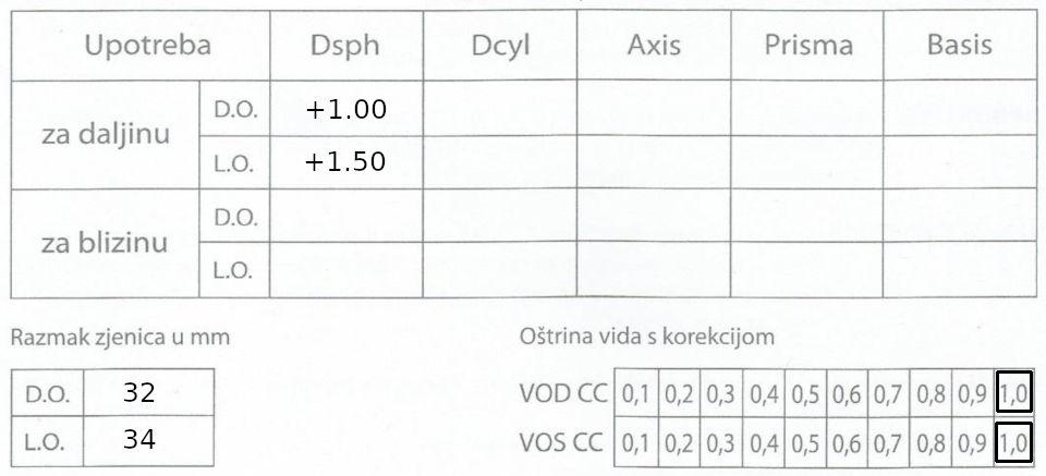 Oftalmološki nalaz dioptrija plus