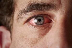 ozljeda oka