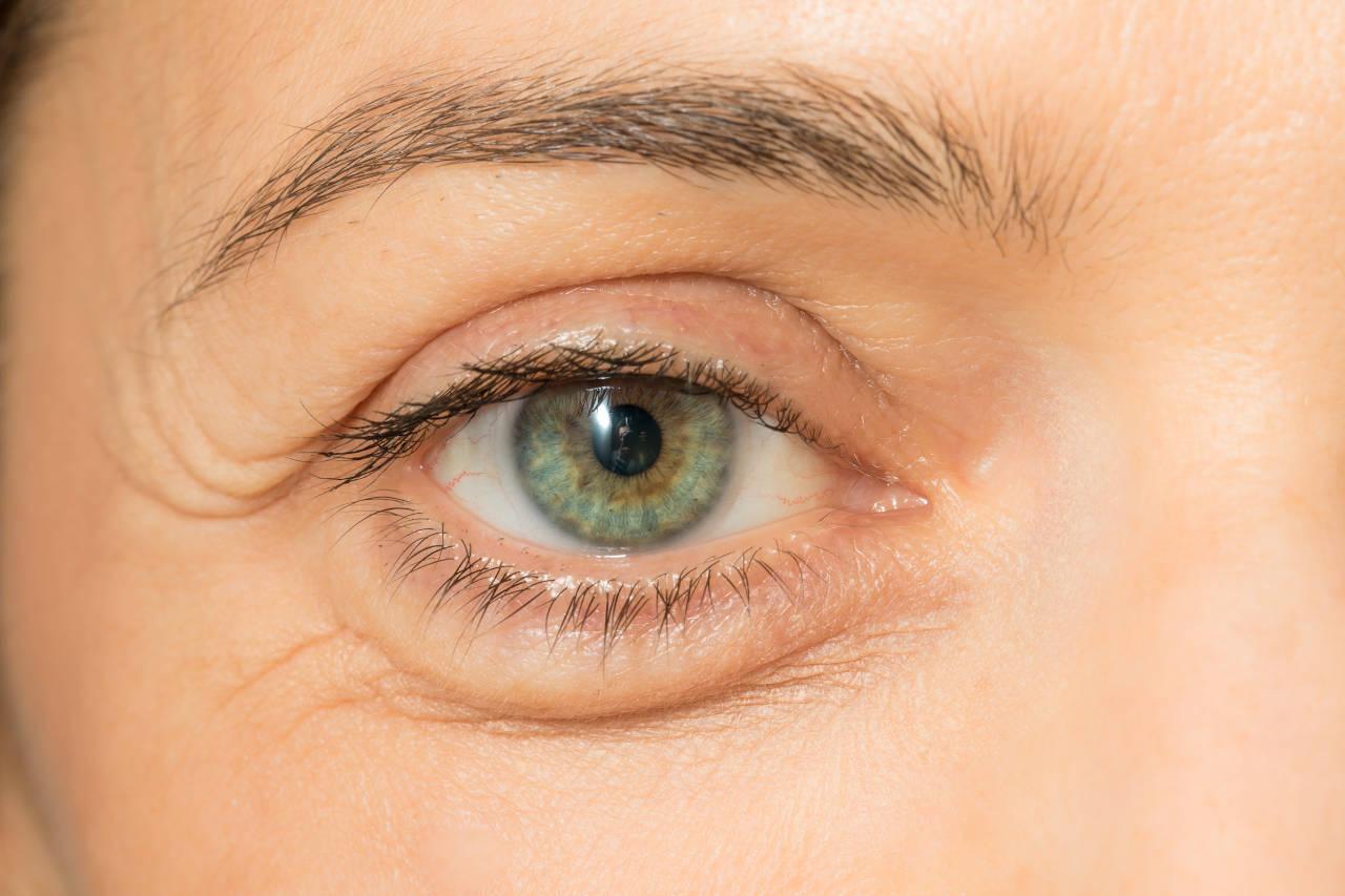 podbuhle oči