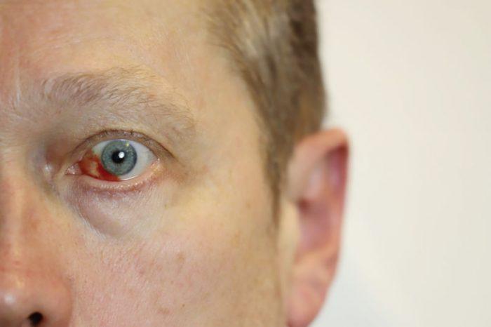 Pucanje kapilara u oku slike 1