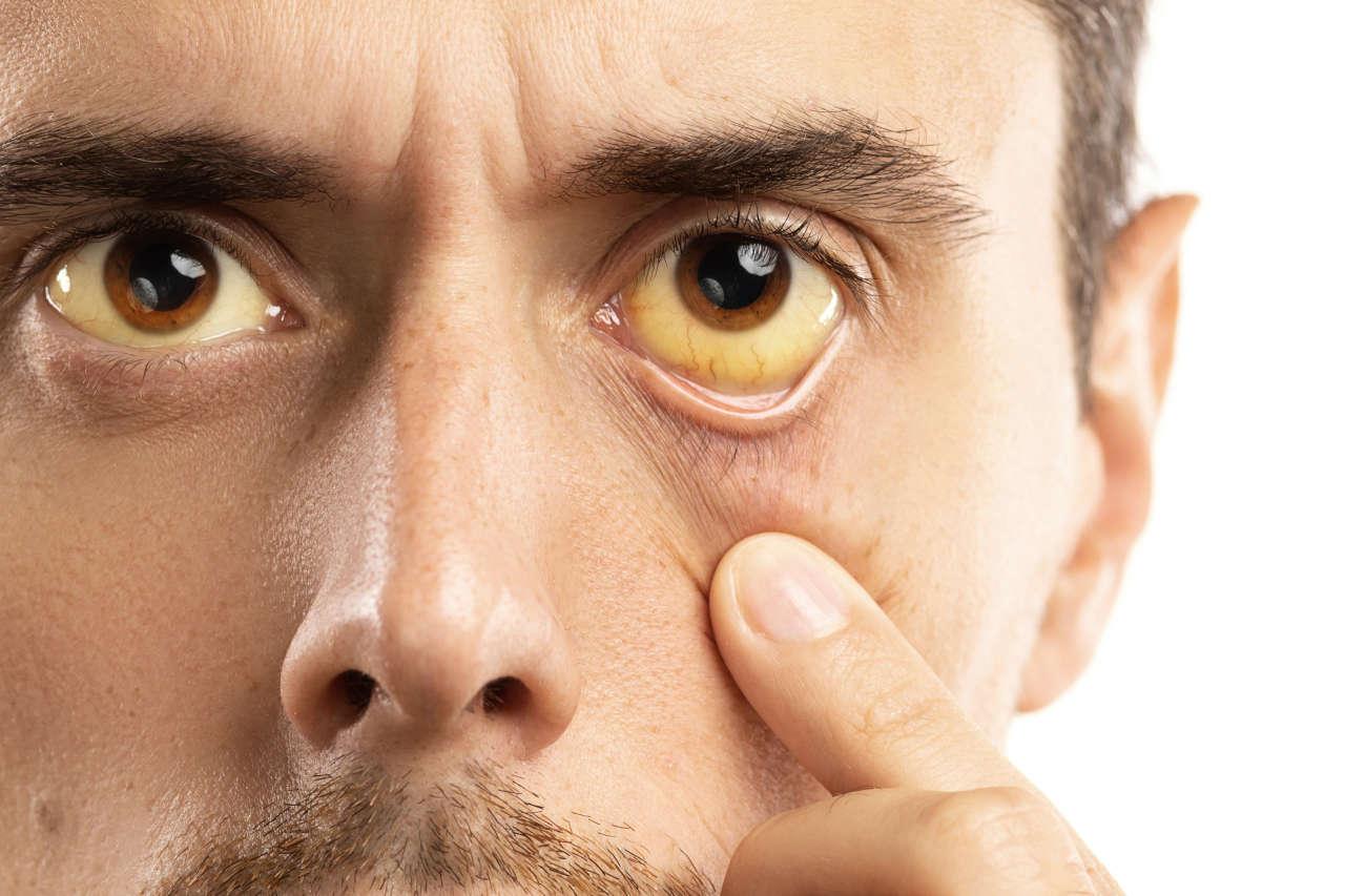 žute oči, bjeloočnica promjene
