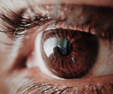 Iritis – upala šarenice oka