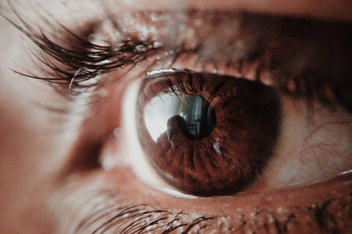 Iritis ili upala šarenice oka - simptomi, uzroci, komplikacije i liječenje