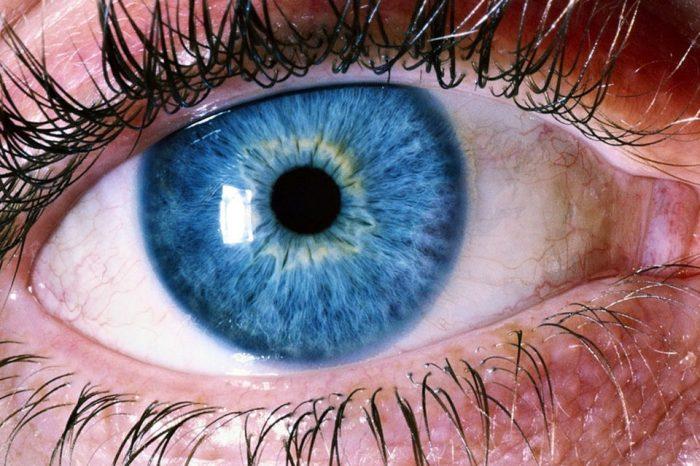 Ablacija retine ili mrežnice - simptomi, uzroci i liječenje