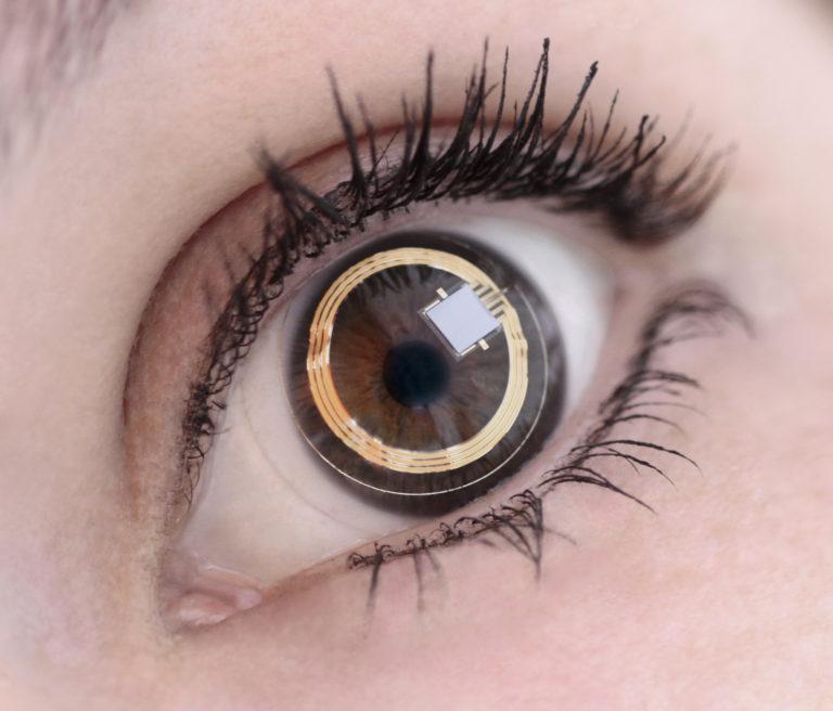 Triggerfish kontaktna leća sa senzorom