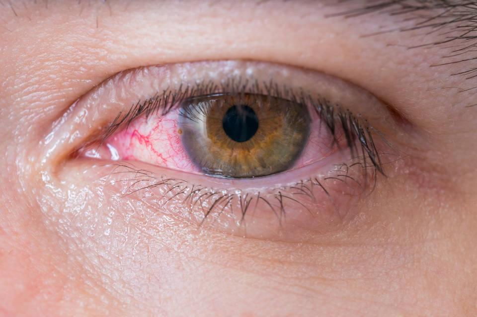 Konjuktivitis simptom koronavirusa