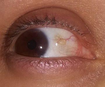 Što je žuta-providna mrlja na oku, koja izgleda kao bubuljica?