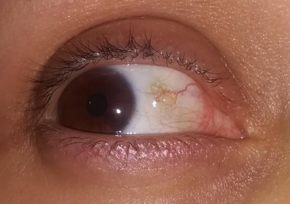 Zuta providna mrlja na oku, bubuljica